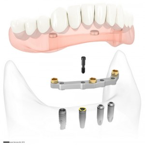 Dentist-Milwaukie-Portland-OR-Regan-Restorative6
