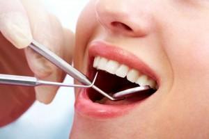 dentalclening